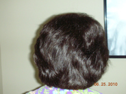 Women's Hair Loss Treatment - After Photo 2